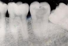 Dental-access - エナメル質う蝕の咬合面 2080ea3583