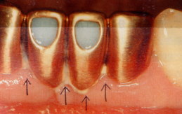 治療をして被せたり、つめたりしたものの隙間にプラーク(歯垢)が付くと取れにくくなります。 c891d95ae1